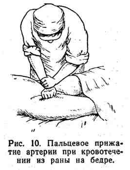 Пальцевое прижатие артерии при кровотечении из раны на бедре