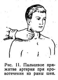 Пальцевое прижатие артерии при кровотечении из раны шеи