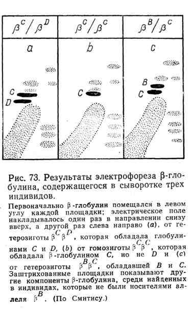 Результаты электрофореза вэтта-глобулина, содержащегося в сыворотке трёх индивидов