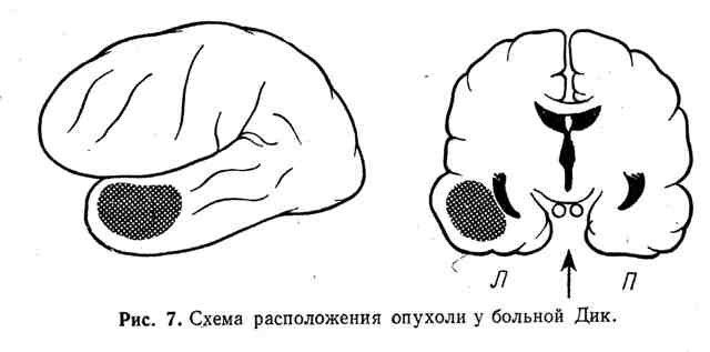 Схема расположения опухоли у больной Дик