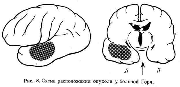 Схема расположения опухоли у больной Горч