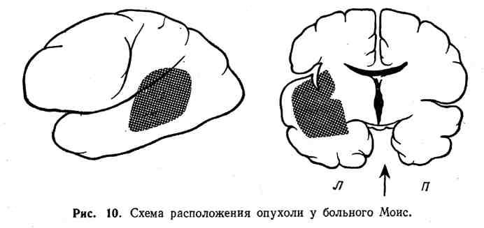 Схема расположения опухоли у больного Моис