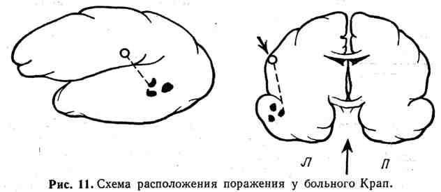 Схема расположения поражения у больного Карп