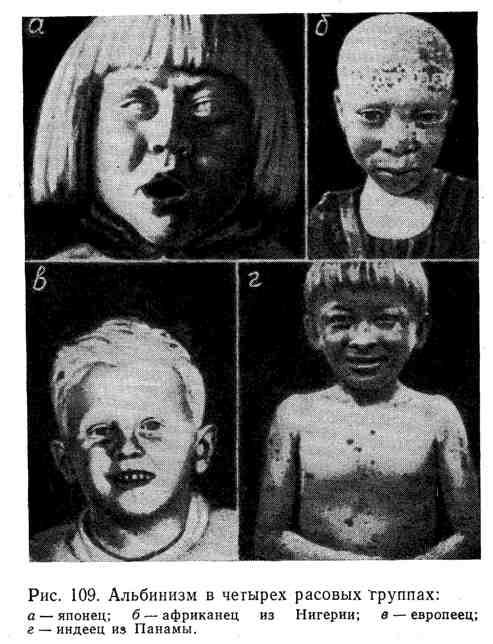 Альбинизм в четырёх расовых группах