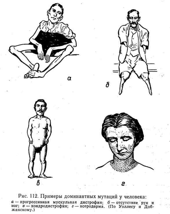 Примеры доминантных мутаций у человека