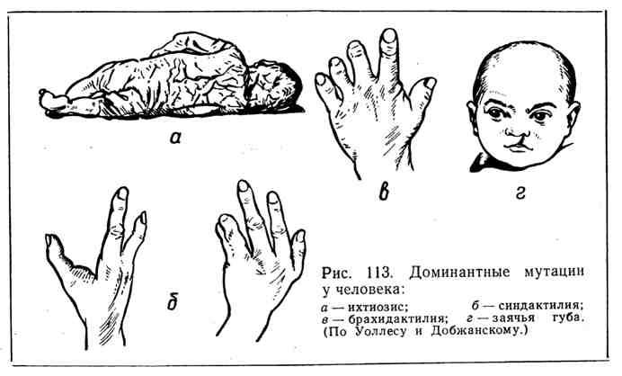 Доминантные мутации у человека