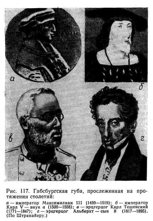 Габсбургская губа, прослженная на протяжении столетий