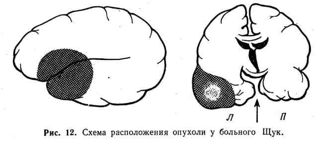 Схема расположения опухоли у больного Щук