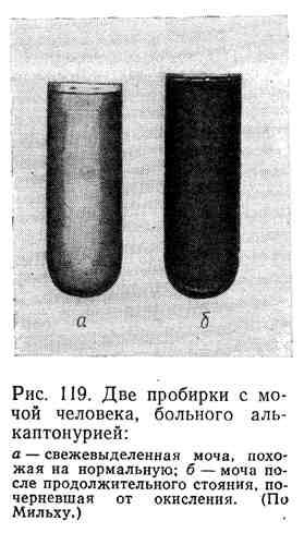 Две пробирки с мочой человека, больного алькаптонурией