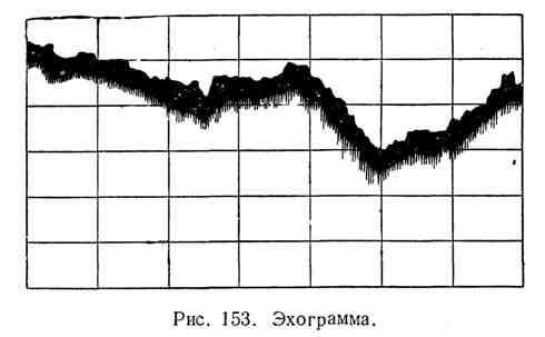 Эхограмма