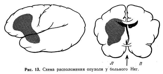 Схема расположения опухоли у больного Нег