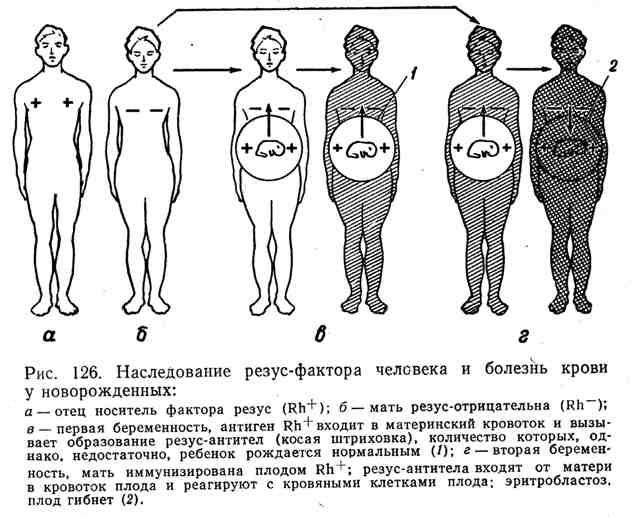 Наследование резус-фактора человека и болезнь крови у новорождённых