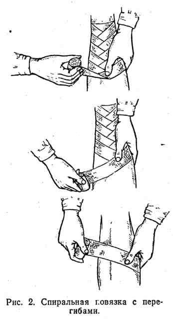 Спиральная повязка с перегибами