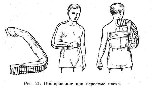 Шинирование при переломе плеча