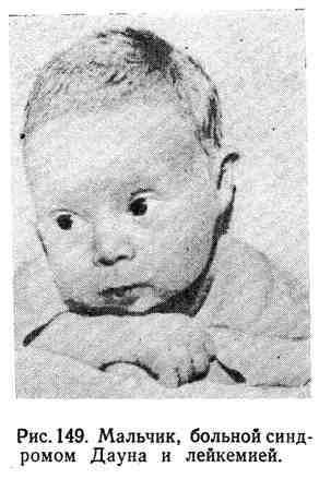 Мальчик, больной синдромом Дауна и лейкемией