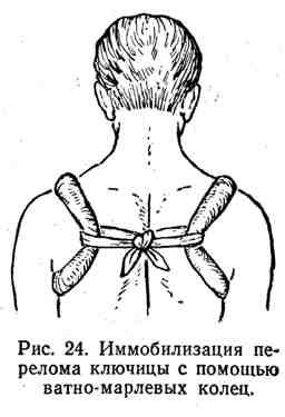 Иммобилизация перелома ключицы с помощью ватно-марлевых колец