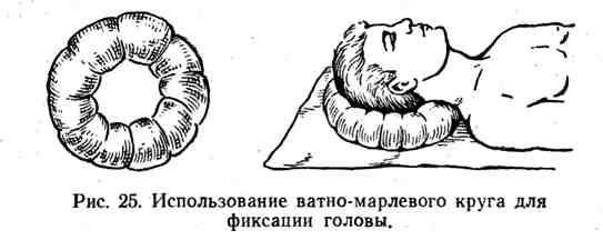 Использование ватно-марлевого круга для фиксации головы