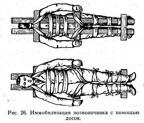 Иммобилизация позвоночника с помощью досок