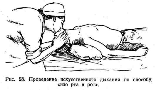 """Проведение искусственного дыхания по способу """"изо рта в рот"""""""