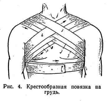 Крестообразная повязка на грудь