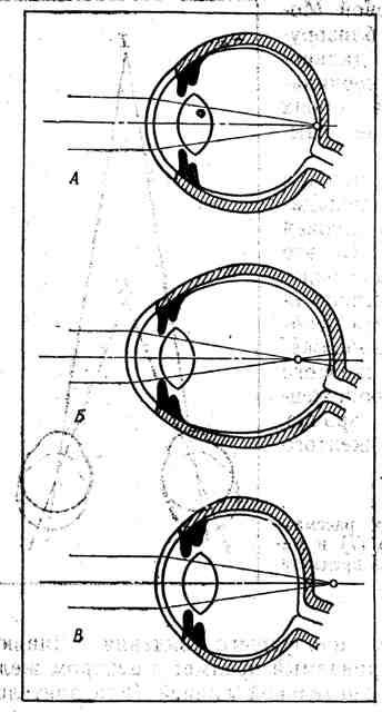Ход лучей и место их пересечения соразмерном, близоруком и дальнозорком глазе