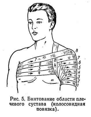 Бинтование полости плечевого сустава (колосовидная повязка)