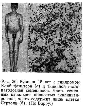 Юноша 15 лет с синдромом Клайнфельтера (а) и типичной гистопатологией семенников. Часть семенных канальцев полностью гиалинизирована, часть содержит лишь клетки Сертоли (б)