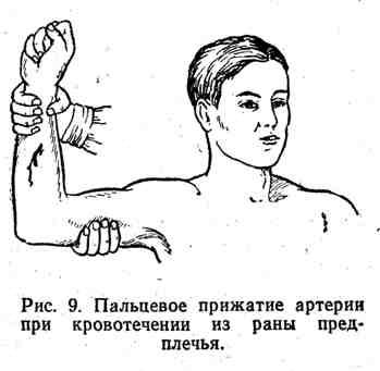 Пальцнвое прижатие артерии при кровотечении из раны предплечья