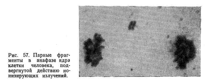 Парные фрагменты в анафазе ядра клетки человека, подвергнутой действию ионизирующих излучений